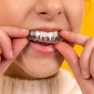 Young girl placing her Invisalign aligner in her mouth