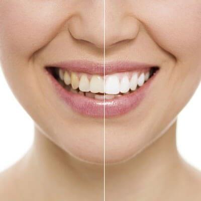 professional teeth whitening north shore image