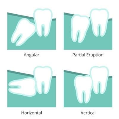 tooth decay in wisdom teeth image